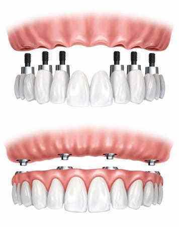 Protezy Stale Na Implantach Metoda All On 4